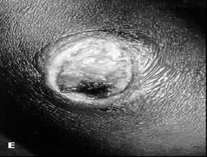 皮肤炭疽首日症状(资料图片)