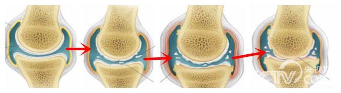 膝关节骨关节炎逐渐发展的模式图